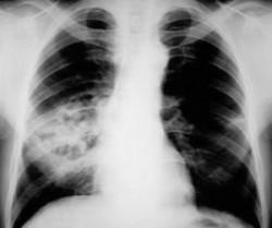Стафилококковая пневмония у детей
